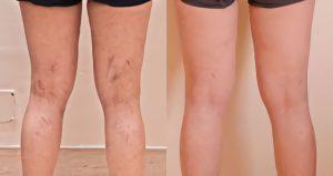 piernas con venas varicosas