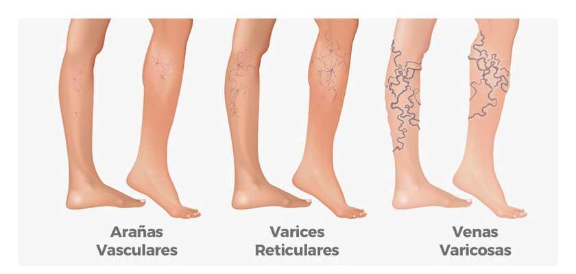 tipos de venas varicosas
