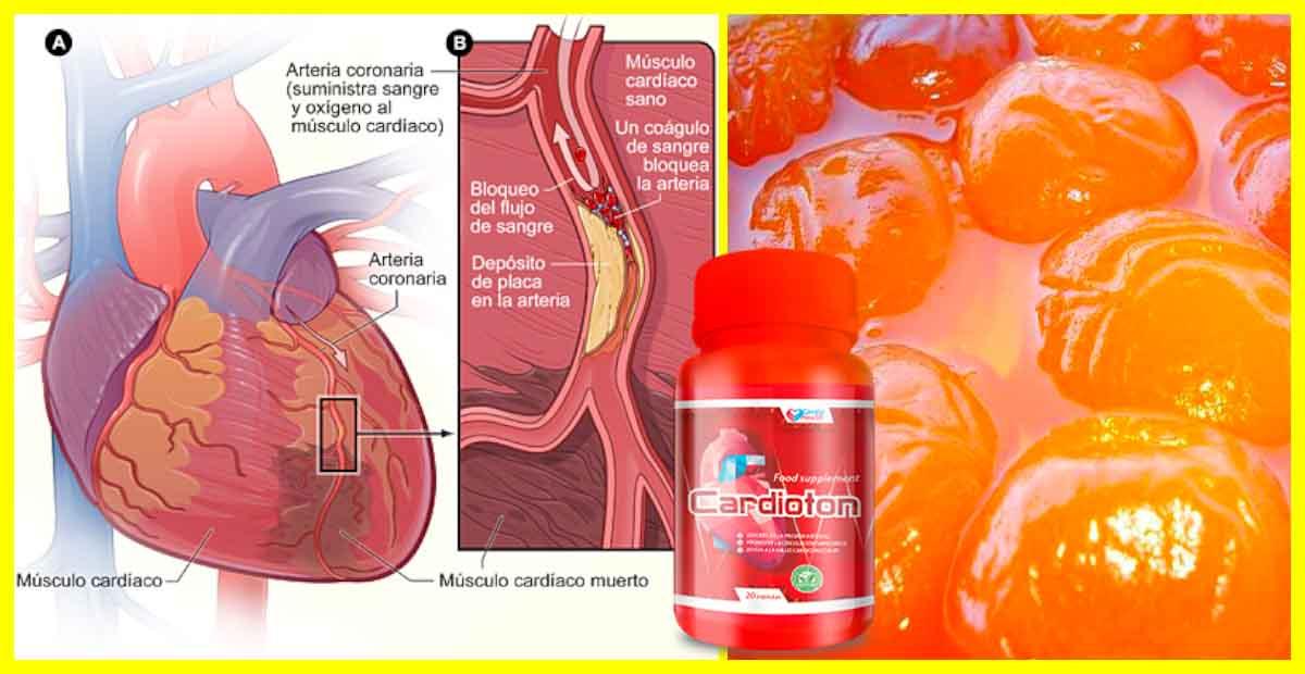 cardioton para la presion arterial